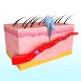 Immune response system of human skin. 3D art illustration of anatomy of Immune response system of human skin Royalty Free Stock Photography