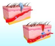 Immunreaktionssystem der menschlichen Haut Lizenzfreies Stockfoto