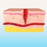 Immunreaktionssystem der menschlichen Haut Lizenzfreie Stockbilder