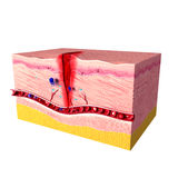 Immunreaktionssystem der menschlichen Haut Stockfoto