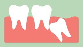 Impacção angular ou mesial do dente de sabedoria ilustração royalty free