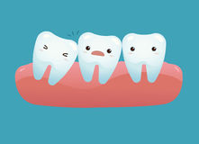 Impacted tooth. Of dental Illustration Stock Photo