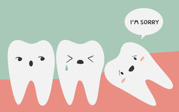 Impacted tooth Royalty Free Stock Photo