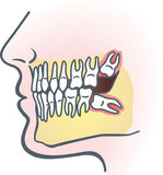 Impacted wisdom tooth Stock Photo