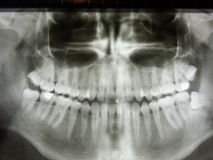 Impacted wizdom teeth panoramic xray Royalty Free Stock Photos