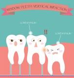Impaction вертикали зубов премудрости Стоковая Фотография RF