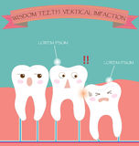 Impaction de verticale de dents de sagesse Photographie stock libre de droits