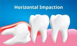 Impaction horizontale de dent de sagesse avec l'affect d'inflammation, concept de soins dentaires, vecteur réaliste illustration stock