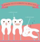 Impaction horizontale de dents de sagesse Images libres de droits
