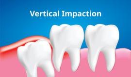 Impaction verticale de dent de sagesse avec l'affect d'inflammation, concept de soins dentaires, vecteur réaliste illustration libre de droits
