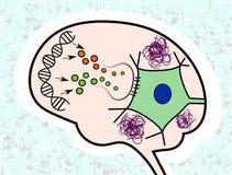 Impaired che segnala nel morbo di Alzheimer Immagini Stock Libere da Diritti