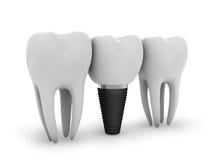 Impianto del dente Fotografia Stock Libera da Diritti