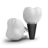Impianto del dente Fotografie Stock Libere da Diritti