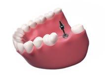 Impianto dentario illustrazione di stock