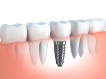 Impianto dentario royalty illustrazione gratis