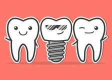 Impianto dentario e denti del fumetto Fotografia Stock
