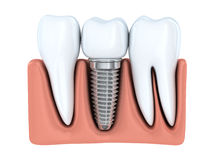 Impianto dentario umano illustrazione vettoriale