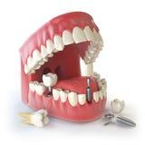 Implant зуба человеческий чистя щеткой вектор зубов малыша принципиальной схемы зубоврачебный Человеческие зубы или dentures Стоковые Изображения