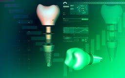 Implant зуба Стоковая Фотография RF