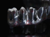 implant fotografia de stock