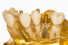 Implant Photo libre de droits