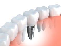Implant dentaire Photos libres de droits