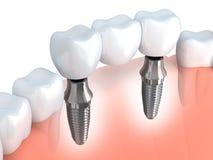 Implant dentaire illustration de vecteur