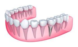 Implant dentaire dans la gomme Image libre de droits