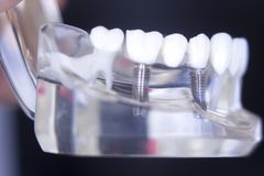 Implant dentaire de dent de Dentsts Photo stock