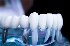 Implant dentaire de dents de dentiste images stock