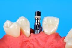 Implant Stock Photos