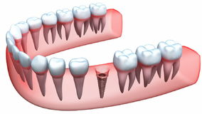 Free Implant Is Embedded In The Gum Royalty Free Stock Images - 54015329