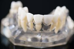 Implant and orthodontic model. Stock Photo