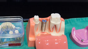 The implant substructure teeth model Royalty Free Stock Photos