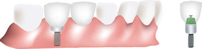 Implant teeth Royalty Free Stock Photos