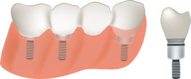 Implant teeth Royalty Free Stock Image