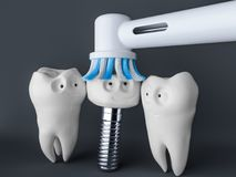 Implant- van het tand het menselijke beeldverhaal 3D Teruggeven Stock Foto's