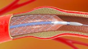 Implantación del Stent para la circulación de sangre favorable en los vasos sanguíneos