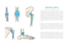 Implantacja łączny kościec Zdjęcie Stock