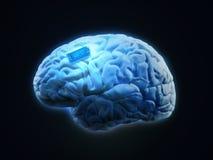 Implantat för mänsklig hjärna vektor illustrationer