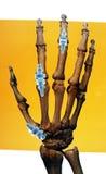 Implantate in der menschlichen Hand Stockbilder