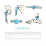 Implantation joint skeleton. Vector banner on the theme of health, the health of human joints and methods of operative treatment by implantation. Vector Royalty Free Stock Photos