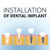 Implantation of the tooth Stock Photo