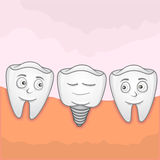 Implantation Tooth Stock Photos
