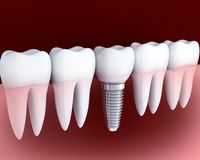 Implante branco e dental do dente Imagens de Stock