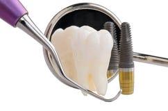 Implante dental imagem de stock