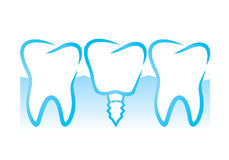 Implante dental libre illustration