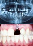 Implante dental Imagens de Stock