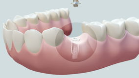 Implante dental brillante ilustración del vector