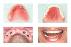 Implante dental da maxila superior imagem de stock